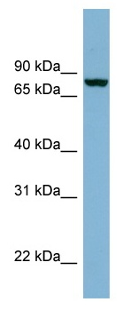 Western blot - Neurochondrin antibody (ab98351)