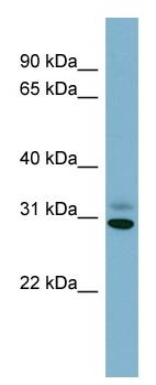 Western blot - PAFAH1B3 antibody (ab98352)