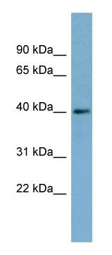 Western blot - RP2 antibody (ab98353)