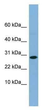 Western blot - RPE antibody (ab98354)