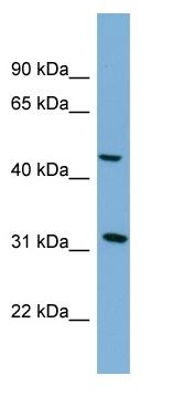Western blot - SERPINI2 antibody (ab98832)