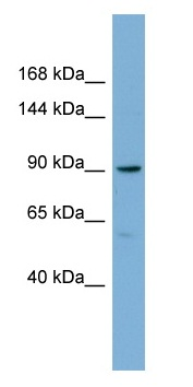 Western blot - E2F8 antibody (ab98834)