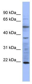 Western blot - Slow skeletal Myosin antibody (ab98835)