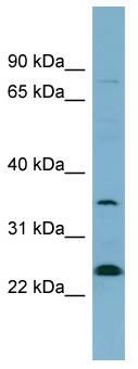 Western blot - NOSIP antibody (ab98838)