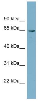 Western blot - PGM3 antibody (ab98842)