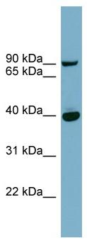 Western blot - PNPLA8 antibody (ab98844)