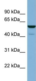 Western blot - LAP3 antibody (ab98847)