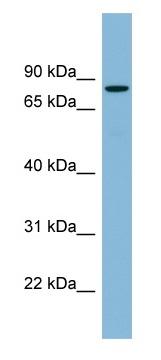 Western blot - EPB41 antibody (ab98854)