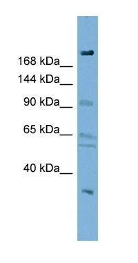 Western blot - DIP2A antibody (ab98858)