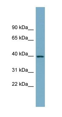 Western blot - SULT2B1 antibody (ab98863)