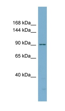 Western blot - delta 1 Catenin antibody (ab98864)