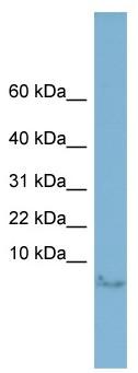 Western blot - Motilin antibody (ab98874)