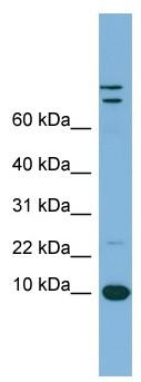 Western blot - Estrogen Inducible Protein pS2 antibody (ab98875)