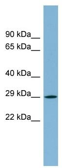 Western blot - EVA1 antibody (ab98877)