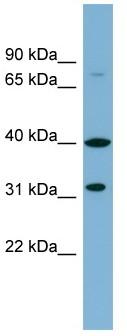Western blot - C9ORF4 antibody (ab98878)