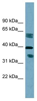 Western blot - DHRS7B antibody (ab98880)