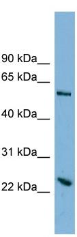 Western blot - TMEM161A antibody (ab98883)