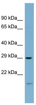 Western blot - COPS7A antibody (ab98898)