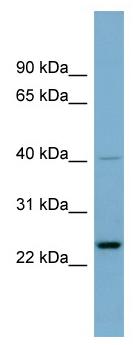 Western blot - HSPC111 antibody (ab98905)