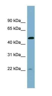 Western blot - UCHL5IP antibody (ab98912)