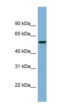Western blot - C2ORF29 antibody (ab98916)