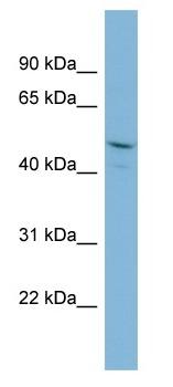 Western blot - PPIL2 antibody (ab98925)
