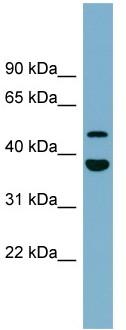 Western blot - UFSP2 antibody (ab98928)