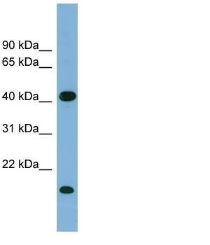 Western blot - BXDC2 antibody (ab98934)