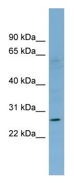 Western blot - KLRF1 antibody (ab98942)