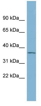 Western blot - GDF15 antibody (ab98945)