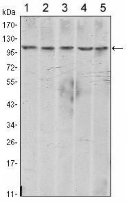 Western blot - N Cadherin antibody [5D5] (ab98952)
