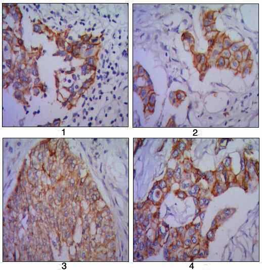 Immunohistochemistry (Formalin/PFA-fixed paraffin-embedded sections) - N Cadherin antibody [5D5] (ab98952)