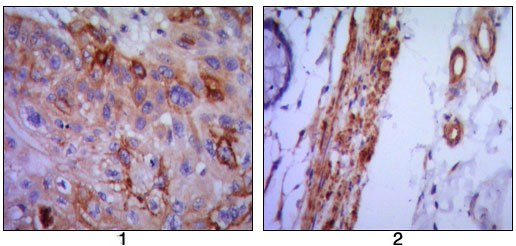 Immunohistochemistry (Formalin/PFA-fixed paraffin-embedded sections) - VCAM1 antibody [6G9] (ab98954)