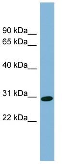 Western blot - C6orf139 antibody (ab98973)