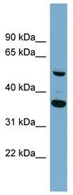 Western blot - ADAMDEC1 antibody (ab98990)
