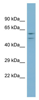 Western blot - ATP6V1B1 antibody (ab98991)