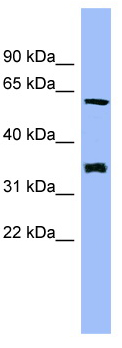 Western blot - HECA antibody (ab98993)