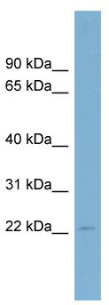 Western blot - C15orf15 antibody (ab98994)