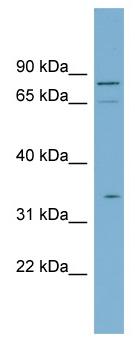Western blot - SLC5A9 antibody (ab98995)