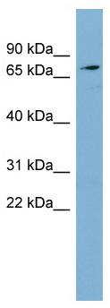 Western blot - SLC7A2 antibody (ab98997)
