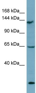 Western blot - LATS1 antibody (ab99006)