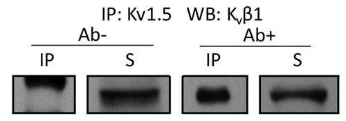 Western blot - Anti-Kv beta 1 antibody [S40-17] (ab99012)