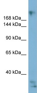 Western blot - EXPH5 antibody (ab99021)