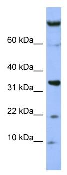 Western blot - FAM178B antibody (ab99051)