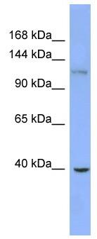 Western blot - ZNF827 antibody (ab99052)