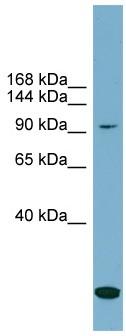 Western blot - SLC12A4 antibody (ab99053)