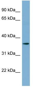 Western blot - TMEM206 antibody (ab99055)