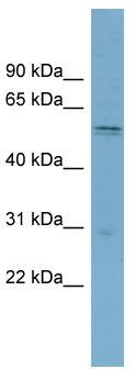 Western blot - xCT antibody (ab99059)