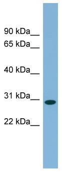Western blot - C11orf57 antibody (ab99062)