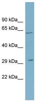 Western blot - SRD5A2 antibody (ab99065)